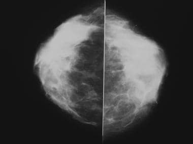 Normal mammograms in a 40-year-old woman show dens