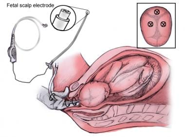 Application of the scalp electrode: after introduc