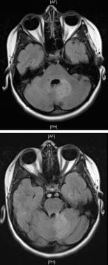 MRI, T2-weighted images of brainstem involvement w