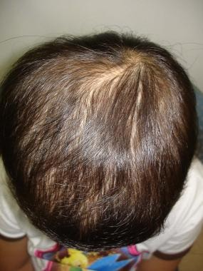 Sometimes, alopecia is not circumscribed but simpl