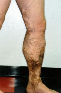 Superficial venous insufficiency with skin changes