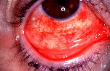 Follicular conjunctivitis and subconjunctival hemo