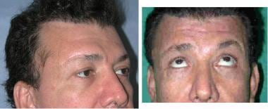 Direct brow lift. Injury to the temporal (frontal)