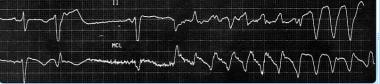 This image demonstrates polymorphic ventricular ta