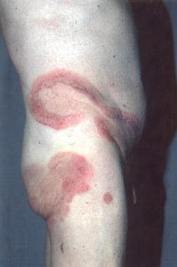 Plaque-stage mycosis fungoides.