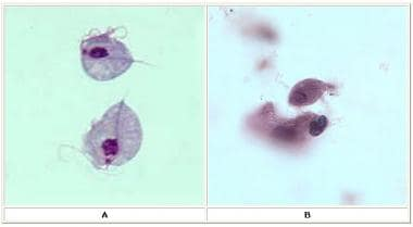 (A) Two trophozoites of Trichomonas vaginalis obta