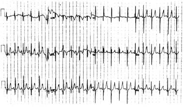 A 12-lead ECG demonstrating the characteristic fea