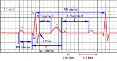 Electrocardiogram waves, intervals, and segments.