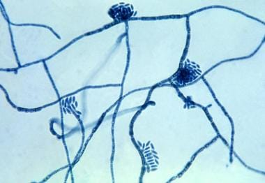 Micrograph of the Hortaea werneckii fungus, which