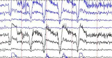 EEG artifact of eye blinking.
