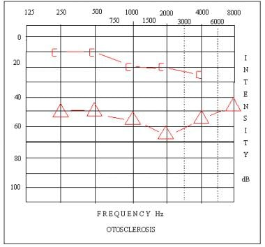 Audiogram depicting a moderate-severe conductive h