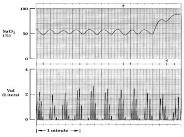 This graph shows the periodic breathing during sle
