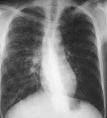 A 27-year-old man diagnosed with reactive airway d