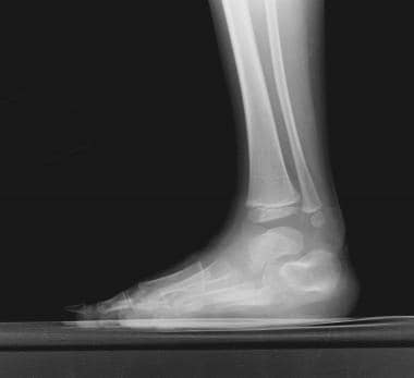 Talipes Equinovarus X Ray