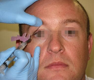 Positioning for supraorbital nerve block.