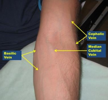 Antecubital veins, left arm.