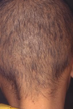 When entire scalp is involved, trichotillomania re