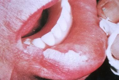 Oral leukoplakia.