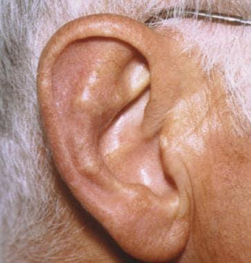 Chondrodermatitis Nodularis Helicis Treatment & Management