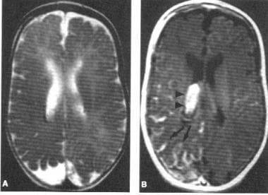 MRI image in Sturge-Weber syndrome.