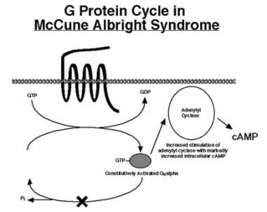 Mutations in McCune-Albright syndrome inactivate i