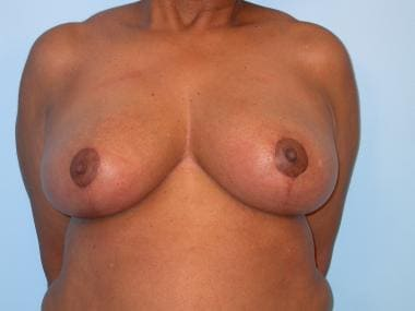 Breast reduction, superomedial pedicle. 2 months p