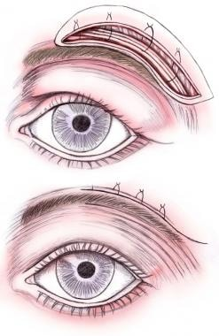 Direct brow lift. Fixation of brow and closure.