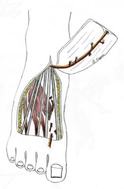 Dorsalis pedis flap, described by McCraw and Furlo