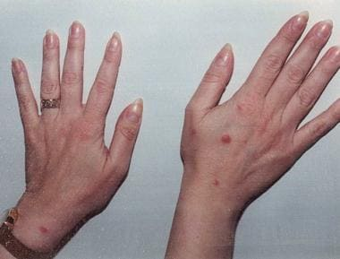 A 40-year-old woman complained of a recurrent skin