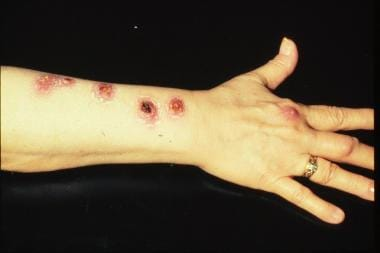 Photograph of Mycobacterium marinum infection.