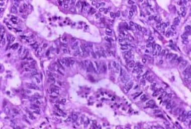 Typical histologic pattern, specifically cribrifor