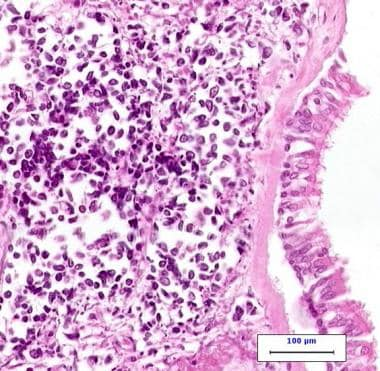 High-power photomicrograph of small cell carcinoma