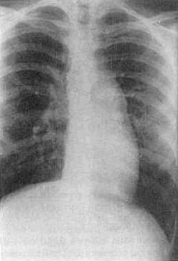 An anteroposterior chest radiograph revealing the