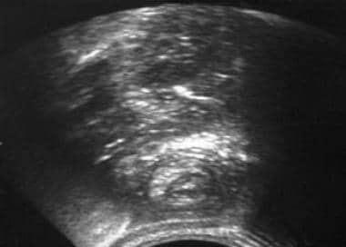 Abdominal ultrasonography reveals the classic targ
