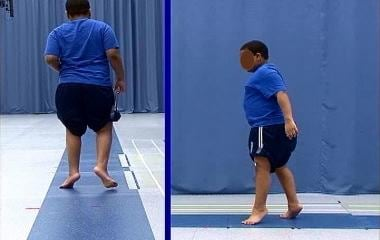 Idiopathic toe walking in 10-year-old boy: rear an