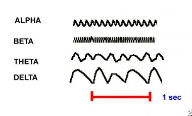 Examples of alpha, beta, theta, and delta electroe