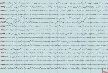 This is a good example of saw tooth waves seen in