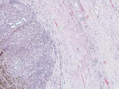 A case of metastatic melanoma to the ovary shows t