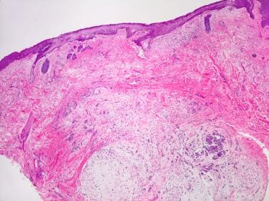 Image shows metastasizing pleomorphic adenoma of s