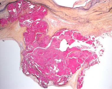 Histologic image of a surgically-excised, congenit