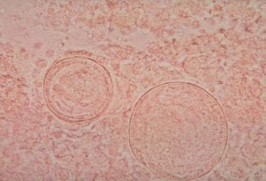 Coccidioides immitis spherule containing daughter