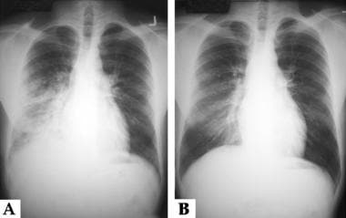 These are the chest radiographs of a young male pa