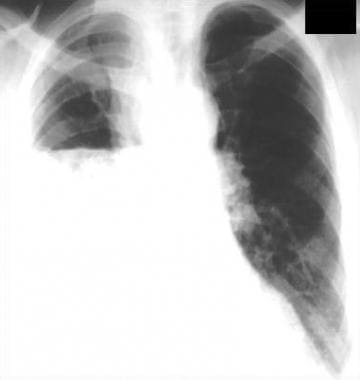 Posteroanterior chest radiograph shows a right-sid