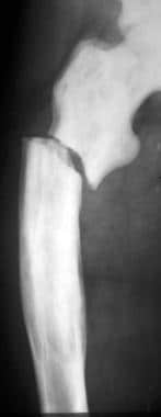 Anteroposterior radiograph of the femur in a patie