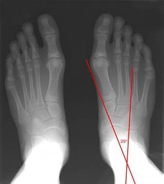 Dorsoplantar projection of a healthy foot shows th