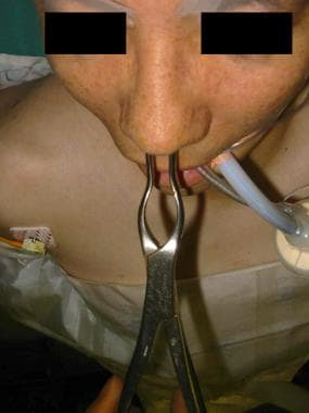 Septal reduction with forceps.