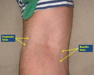 Antecubital veins, right arm. Note variable anatom