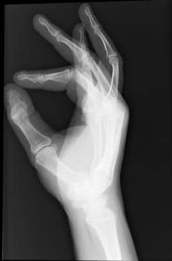 Y-shaped bifurcation of the distal phalanx of the
