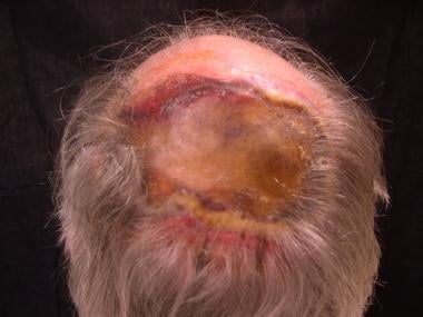 Factitial ulceration on the scalp from chronic man