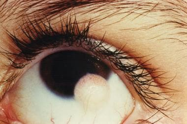 Limbal dermoid in the left eye of a 13-year-old ma